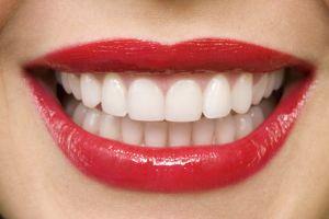 32 белых зуба. Об отбеливании